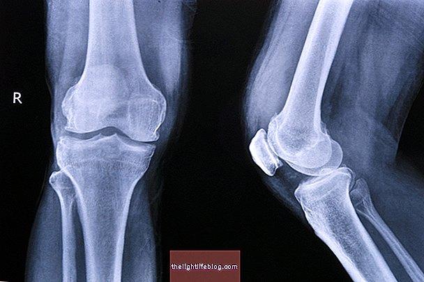 sanariu artrozes gydymas artritas iš pirštų ir pėdos sąnarių