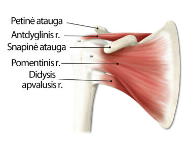 raumenų ligos peties sąnario