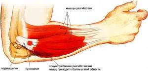 edema netoli alkūnės sąnario sąnarių liga kumeliukų