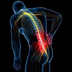 osteochondrozė apie į liaudies gynimo gydymo pirštais jei sąnariai kenkia liaudies gynimo