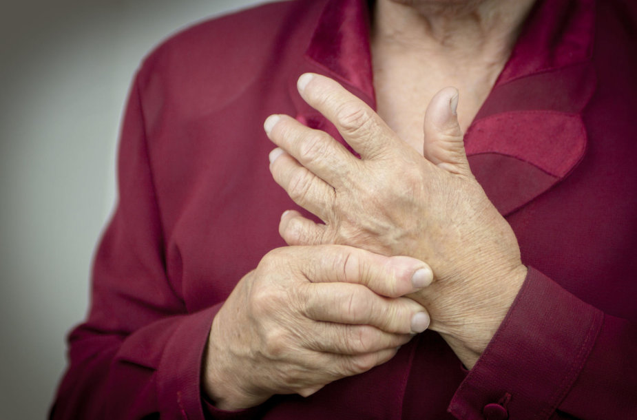 uždegimas gelių sąnarių skauda pirštas sąnariai ką daryti