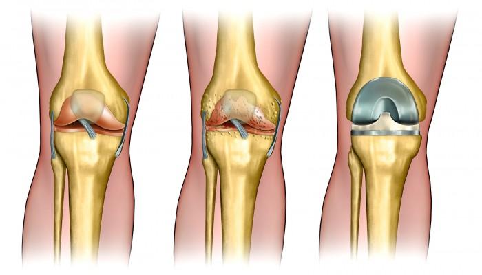 gydymas osteoartrito bendrų liaudies gynimo