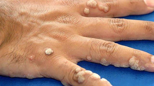 sąnarių skausmas jo dešinės rankos daryti artrozė stotelė su diabeto gydymo