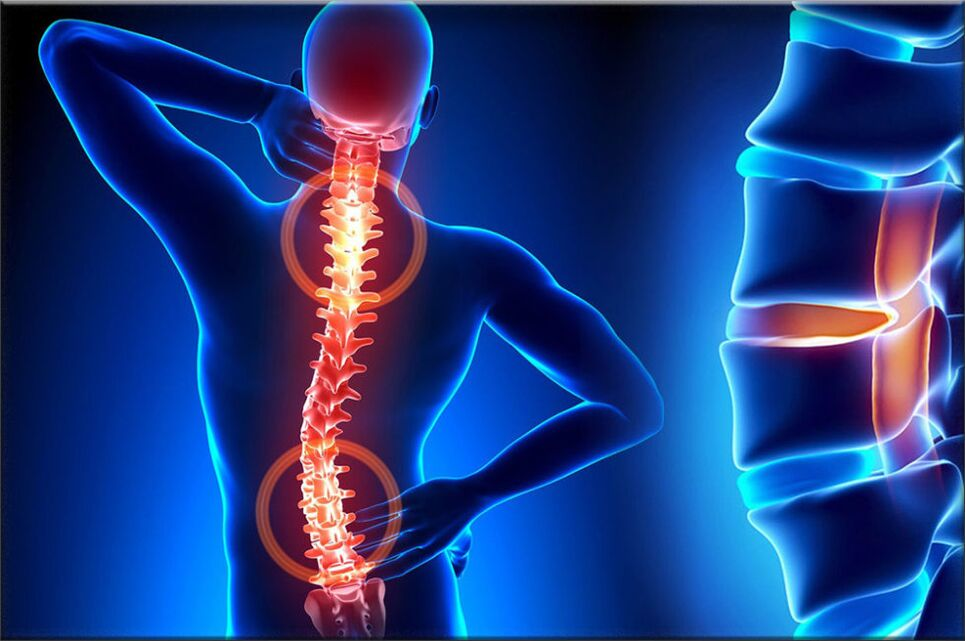 ii laipsnio osteochondrozė skauda šiukšlių makiažas ką daryti