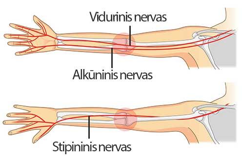 išlaikyti skausmą žemiau alkūnės priežastys iš alkūnės sąnario traumos