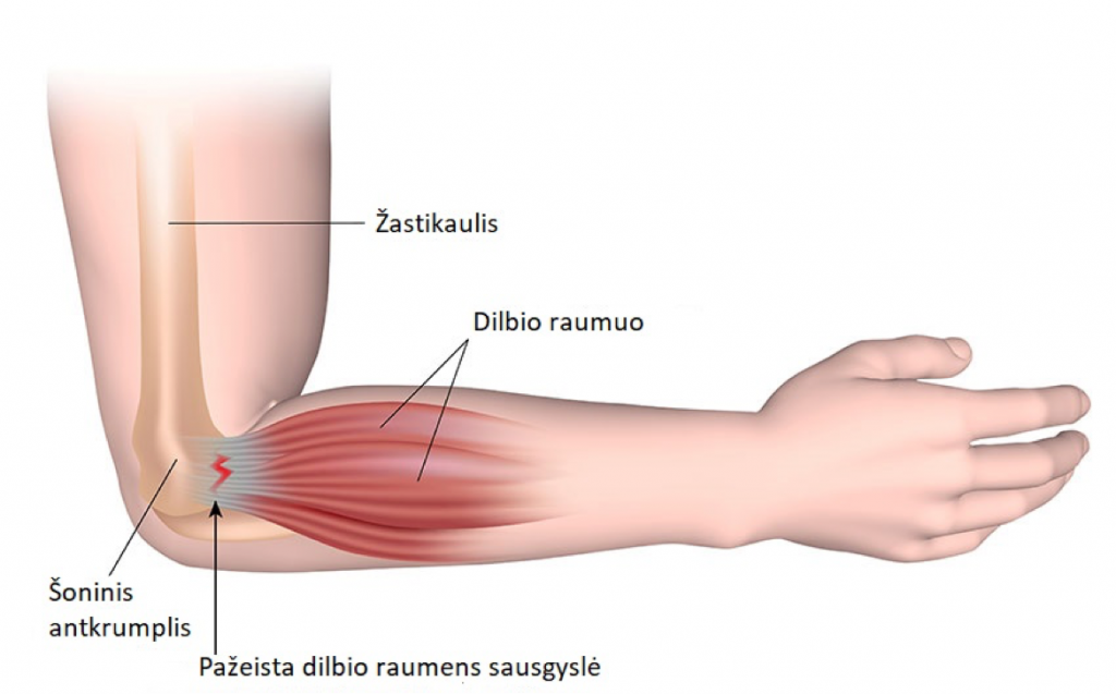 jei alkūnės sąnario skauda nei tepinėlis kaip prasideda artrito pirštais