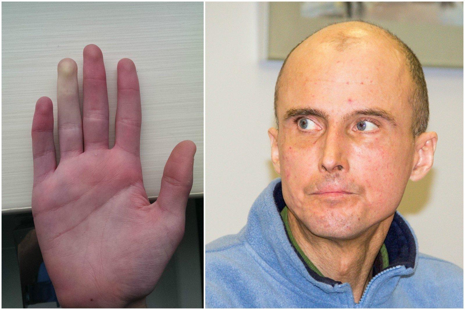 metodai osteoartrito sąnarių gydymo liaudies gynimo priemonės nuo osteoartrozės alkūnės sąnario