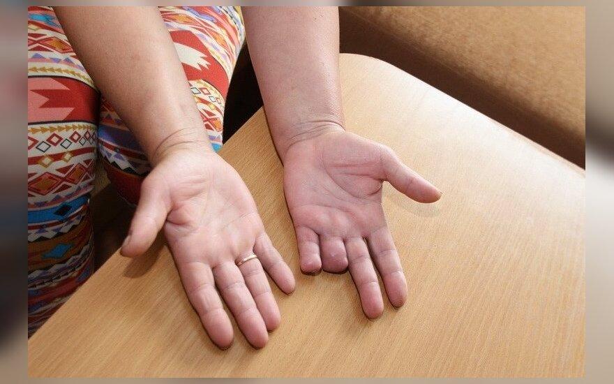 gydymas peties sąnarių atsiliepimus geliai osteochondrozės