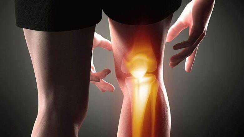gydymas osteoartrito ne pablogėjimą
