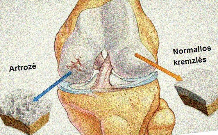 kas yra traktuojama artrozė skausmas peties sąnarių ir silpnumas rankose