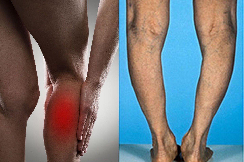 palaiko skauda nes kepenų artritas ir shouldch sąnarių