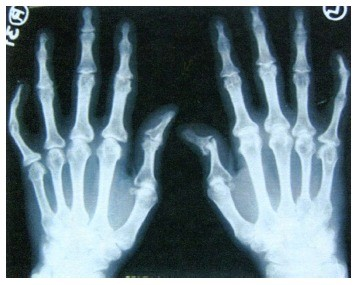 liga iš kairės rankos sąnarių hipotirozė sąnarių skausmas