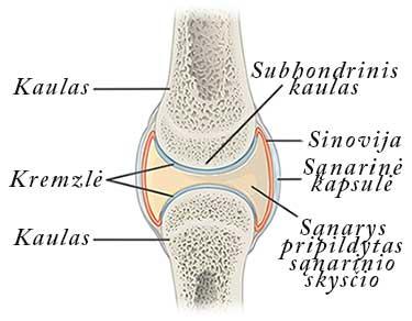 artritas globos sąnarių
