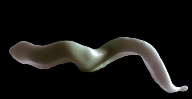 miego liga prevencija skausmas sąnariuose ir raumenyse