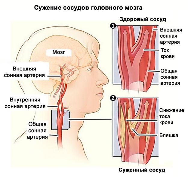 osteochondrozė veido sąnario pluoštai peties sąnarių skausmas