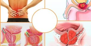 nei gydyti osteoartrito kaklo slankstelių