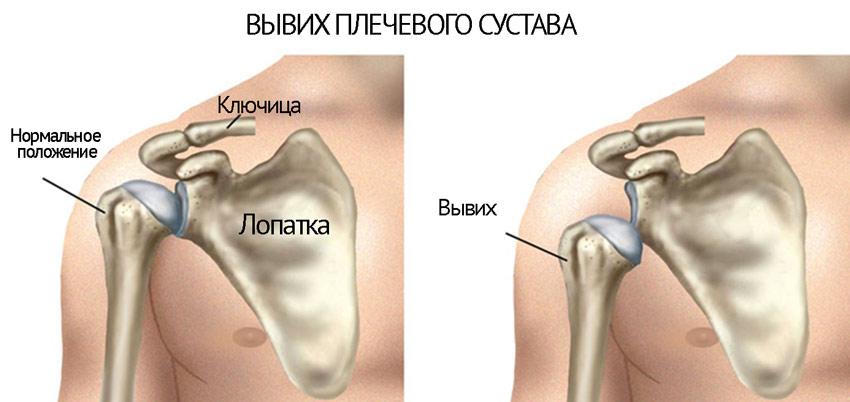 klevas ir sąnarių gydymas skauda rankas nuo svorio sąnarius