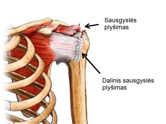 sąnarių skausmas gydymas bruceliozės su peties skausmo