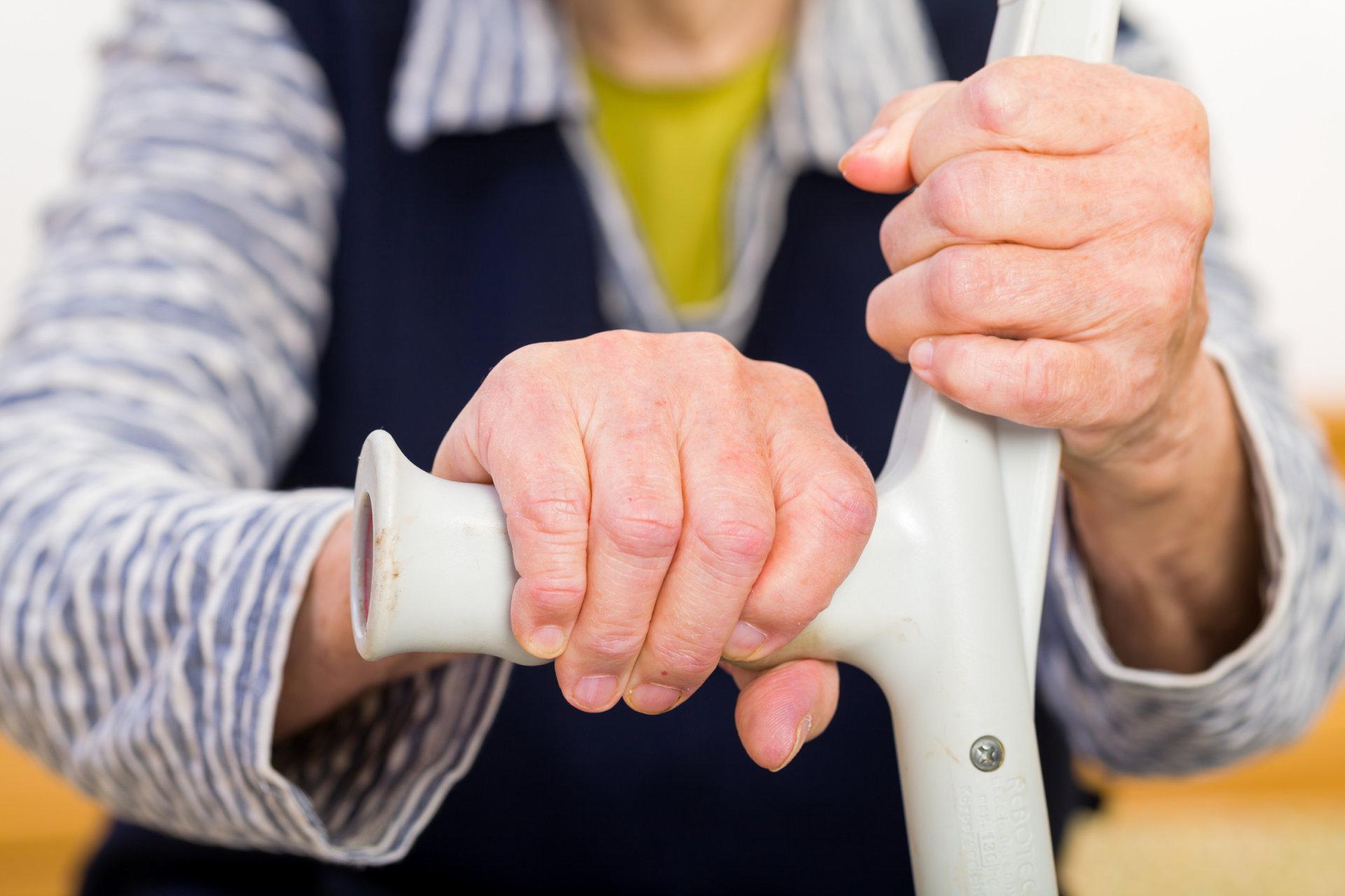 pirmieji požymiai artritu rankas