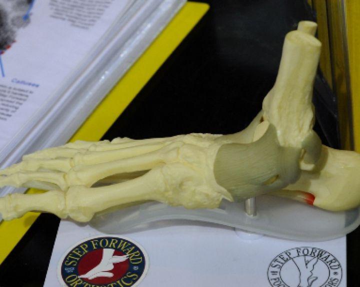 gerklės alkūnės sąnario kai pakėlė ligos kaulų ir sąnarių žmogaus rankas rankas
