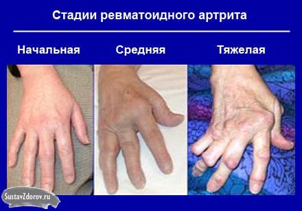procedūros artrito jungtys baisi skausmas sąnario