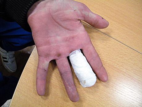 rankų traumos ant piršto