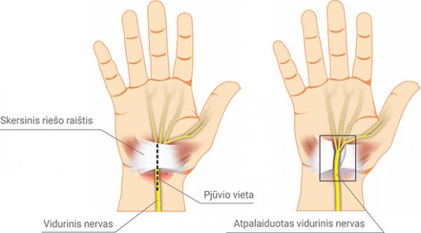 rieso kanalo sindromas kineziterapija suaugusiųjų sąnarių artrozė