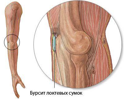 gydymas hemotoma sąnario liaukos ir sąnarių ligos