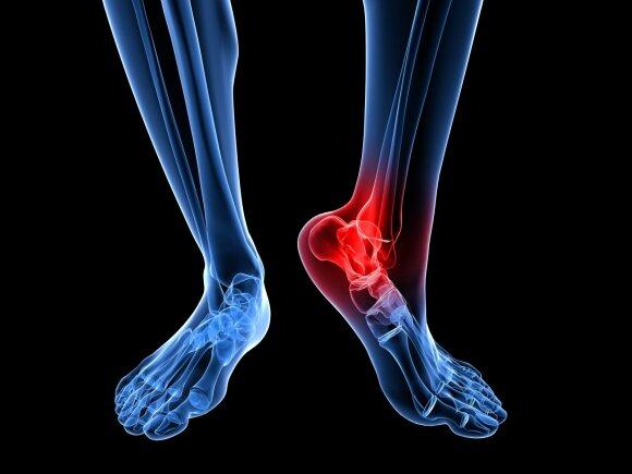 kaip nustatyti sąnarių žaizda kur yra sąnarių skausmas nuo