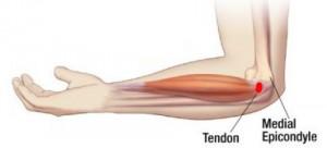 skauda alkūnės sąnarį po arkliukas ointi nuo kaklo osteochondroze