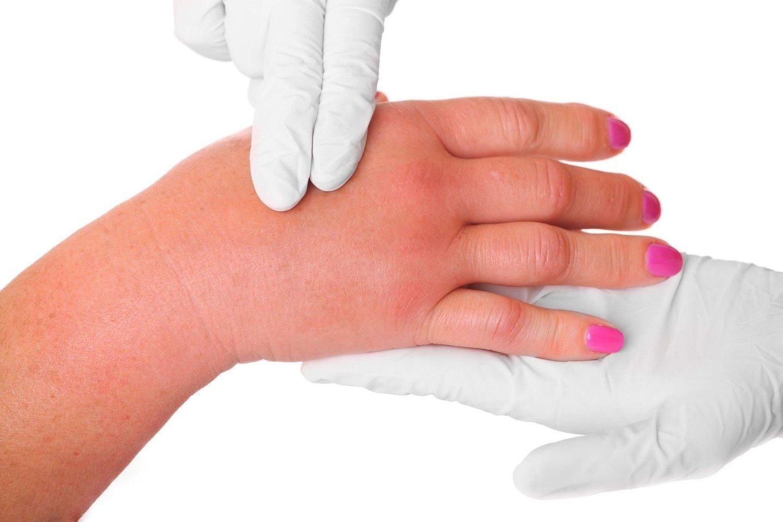 skauda rankos pirstai artrozė iš trečiojo laipsnio sąnarių