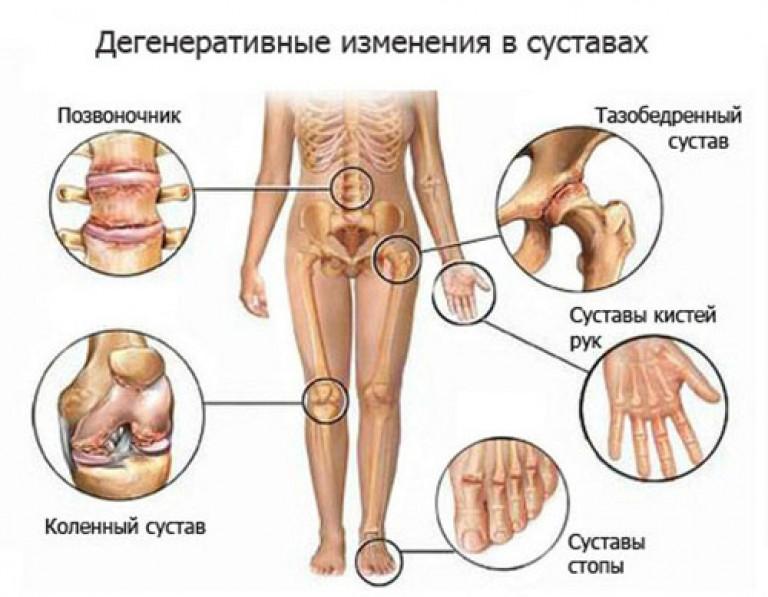 kaip ir pašalinti skausmą alkūnės sąnario uždegimas osteoartrito peties sąnario