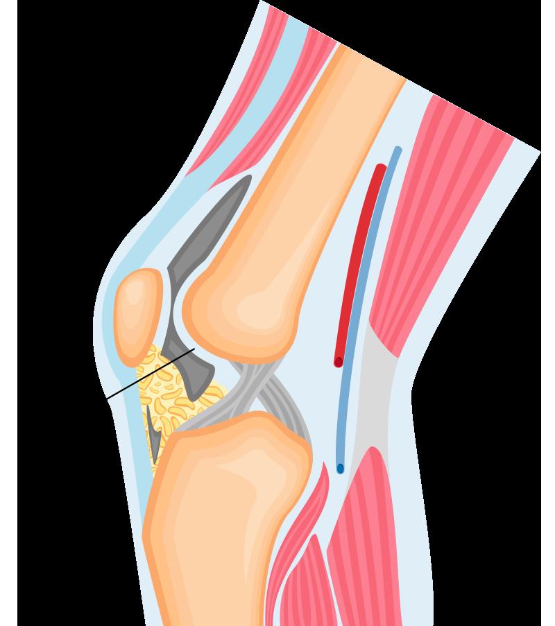 artrozė peties sustav namuose