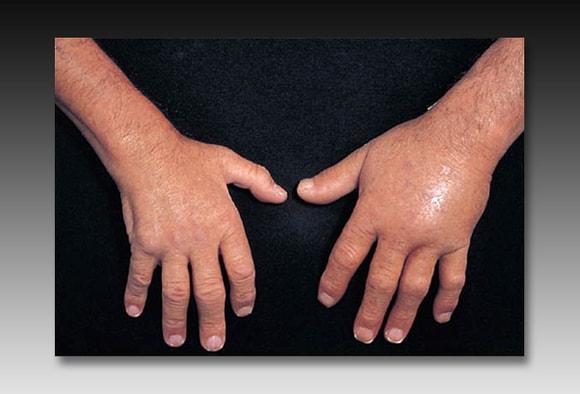 vaistai nuo nugaros skausmo ir uzdegimo
