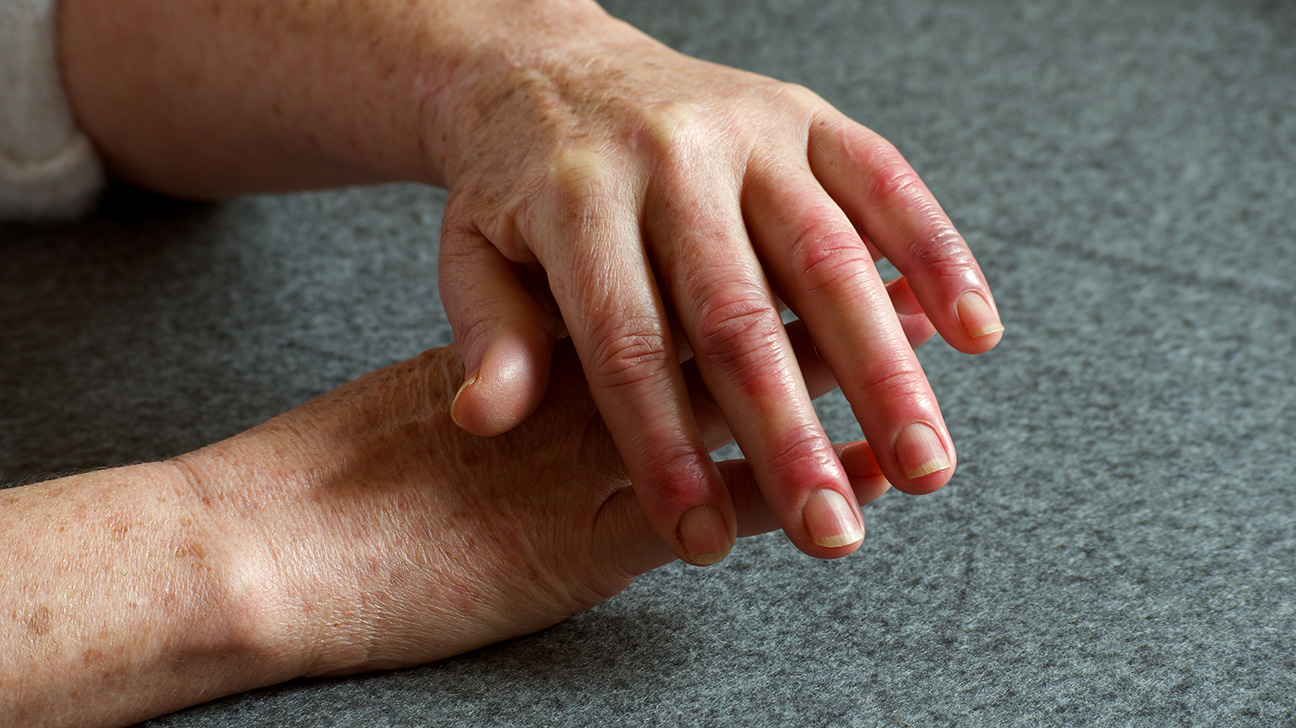 prieskoniai iš sąnarių skausmas