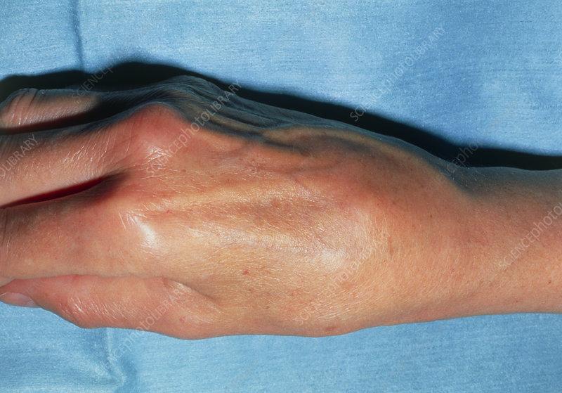swelling joints in wrist ką gerti skausmas šepečiai sąnarių