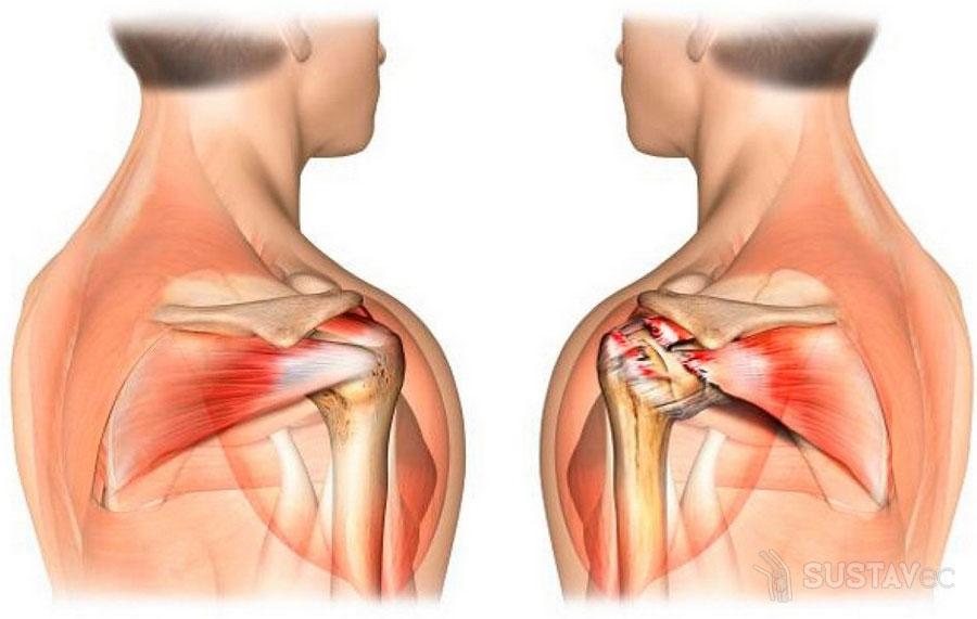 kaip pašalinti patinimas metu sąnarių artritas