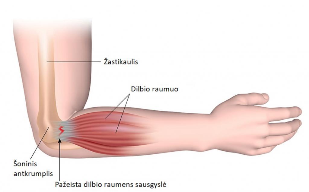 uždegimas minkštųjų audinių alkūnės sąnario