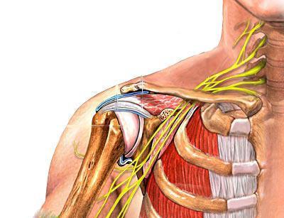 uždegimas peties sąnario kaulų radikulitas iš peties sąnario gydymas