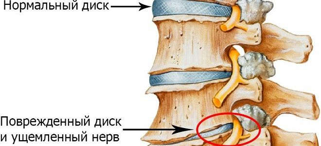 etape artrozės keičiasi sąnarį leukocitus sąnarių uždegimą